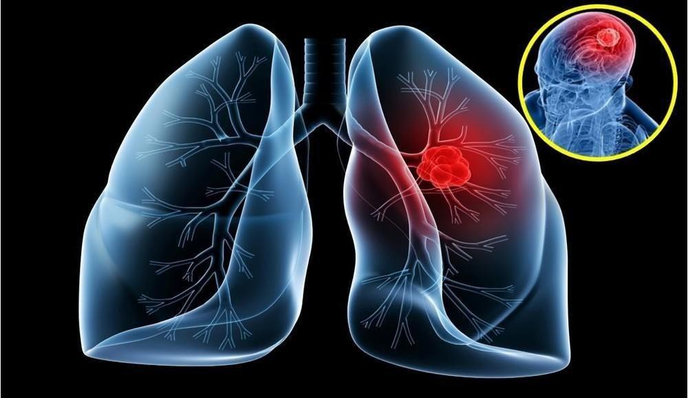 thuốc trị ung thư Iressa (gefitinib)