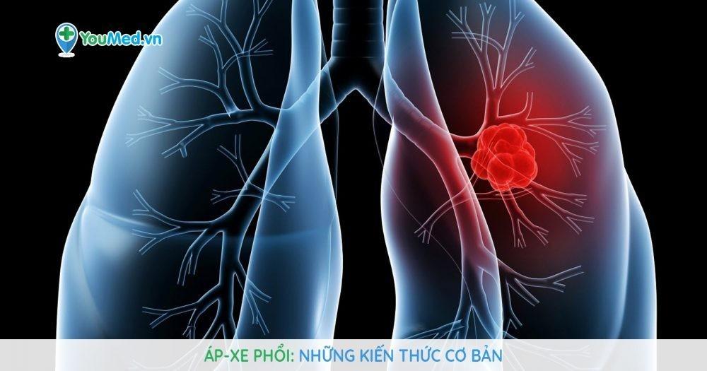 Áp-xe phổi : Những kiến thức cơ bản mà bạn cần biết