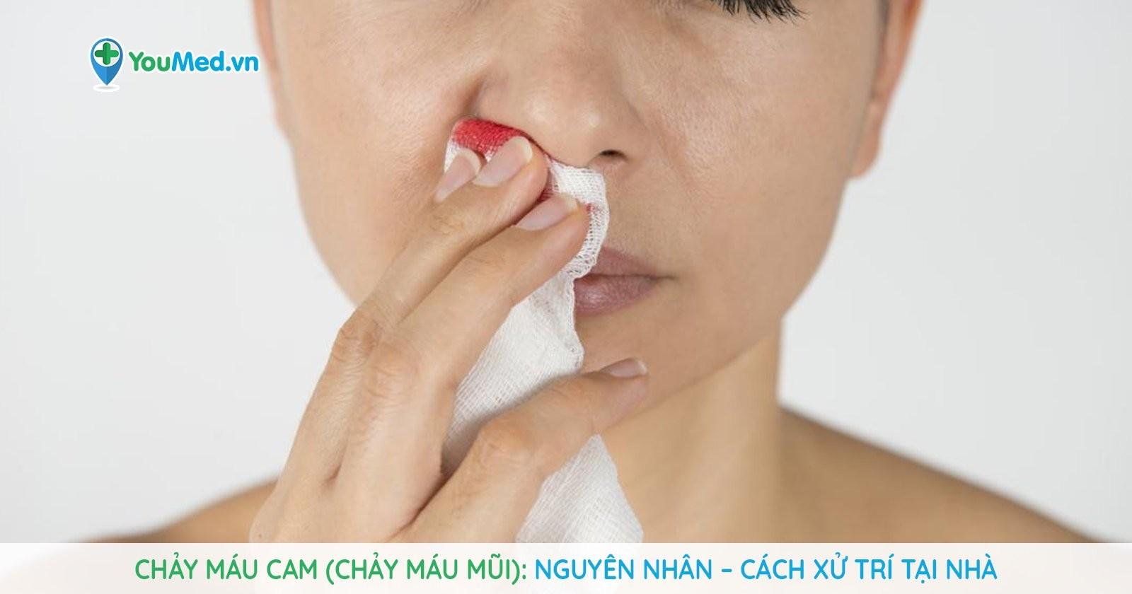 Chảy máu cam (chảy máu mũi): Nguyên nhân, cách xử trí tại nhà