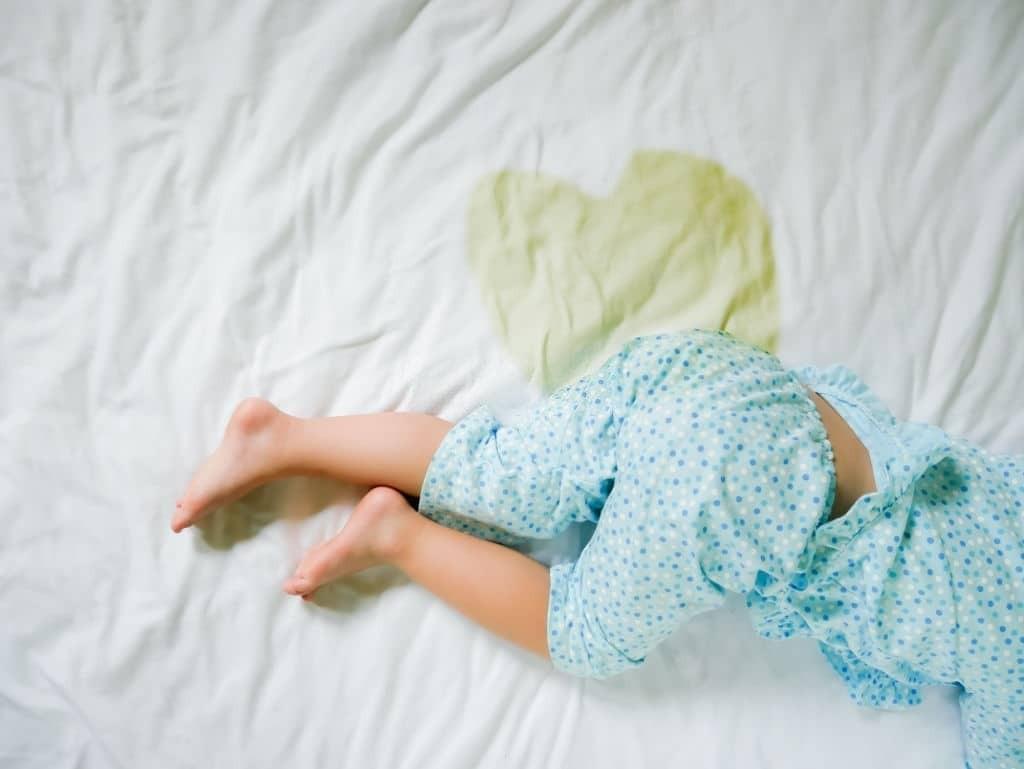 Đái dầm là tình trạng khá phổ biến ở trẻ