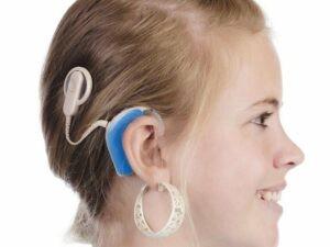 Cấy ốc tai điện tử là một giải pháp cho bệnh nhân điếc