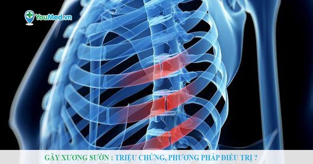 Gãy xương sườn : Triệu chứng, phương pháp điều trị?