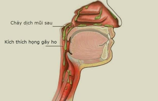 Chảy dịch mũi sau là nguyên nhân thường gặp nhất của ho kéo dài