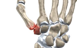 đau nền ngón tay