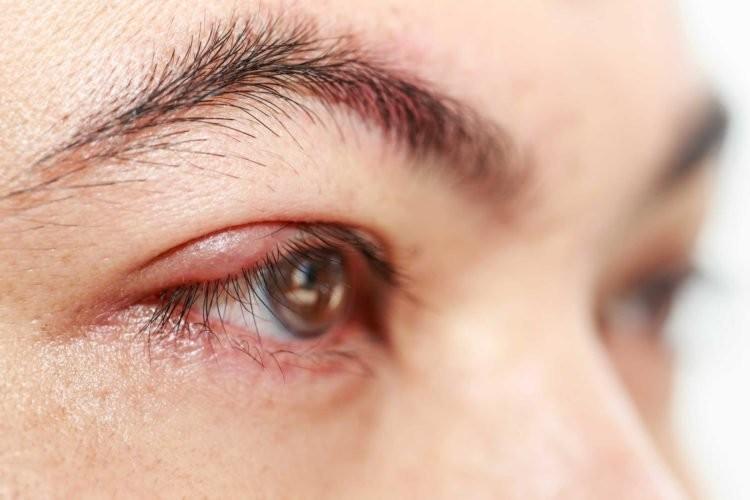 thuốc nhỏ mắt Sanlein