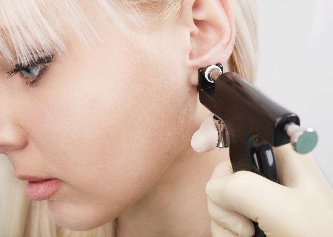 sẹo lồi vành tai