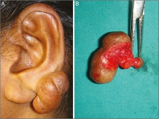 cách chữa sẹo lồi tai