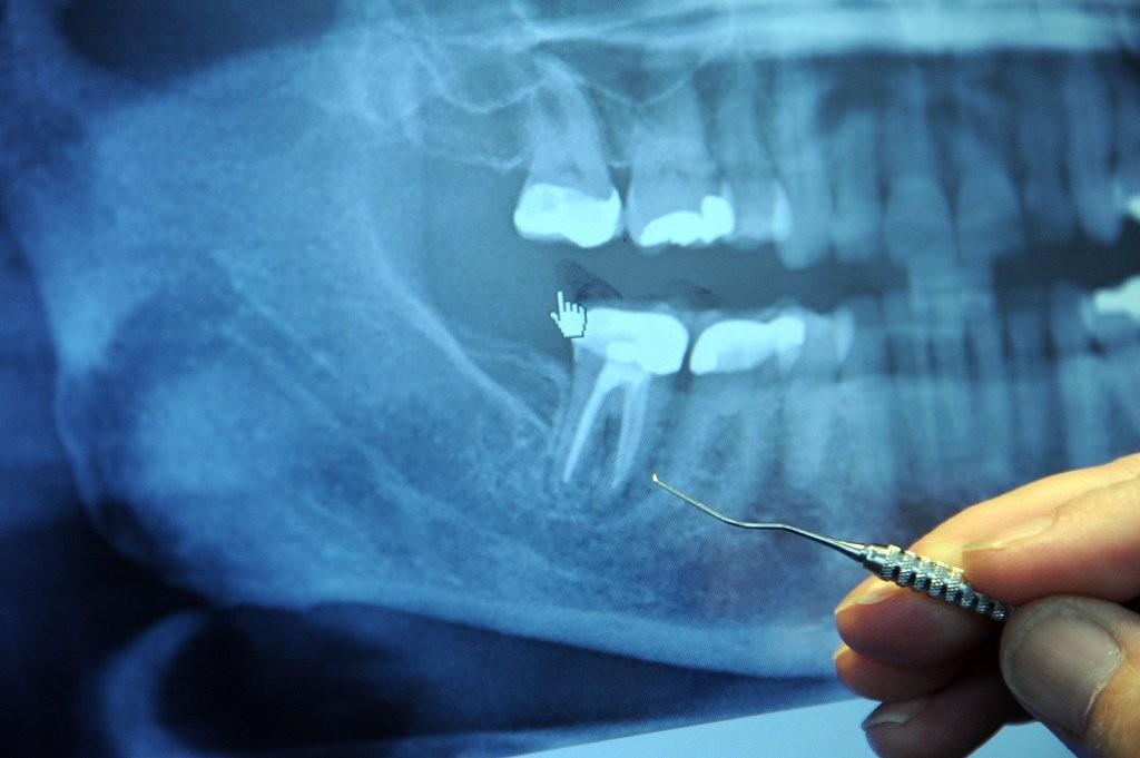 Áp-xe hay nhiễm trùng răng