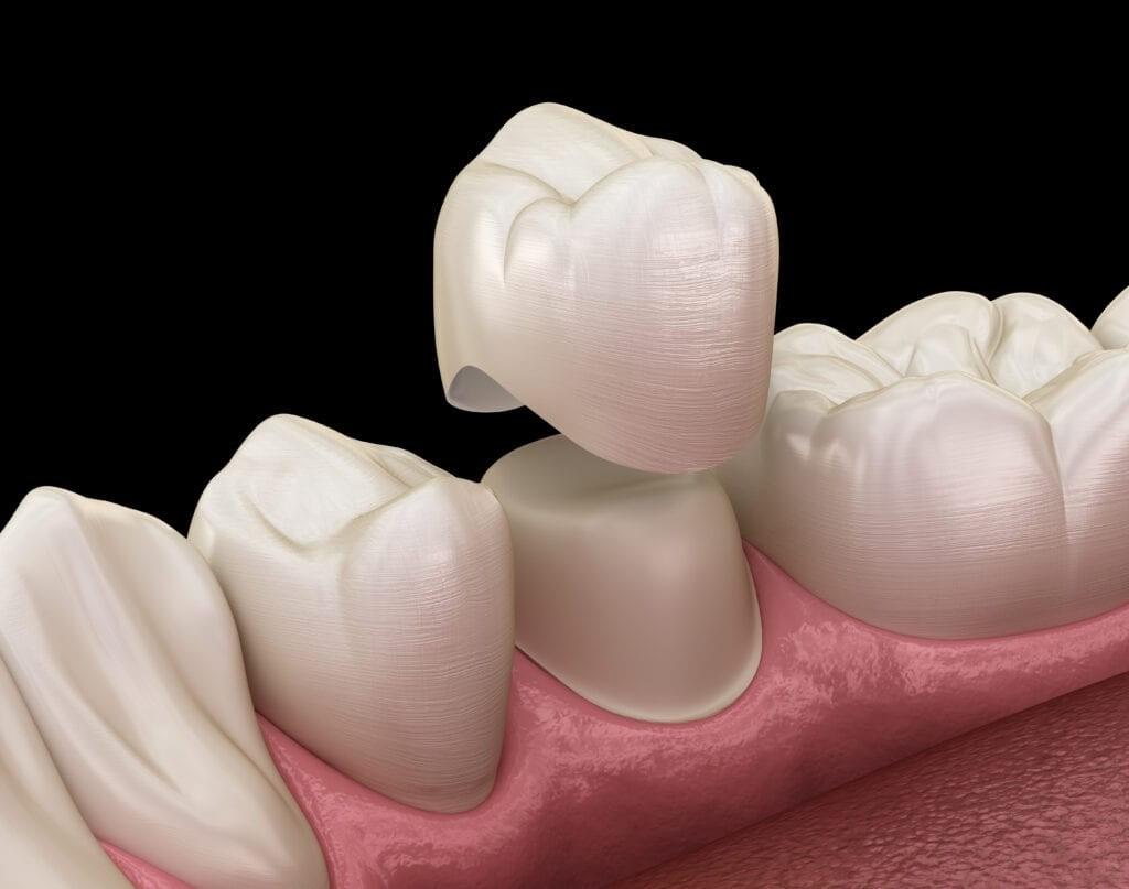 Răng sứ sau cùng