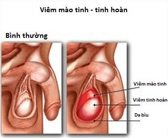 viêm tinh hoàn