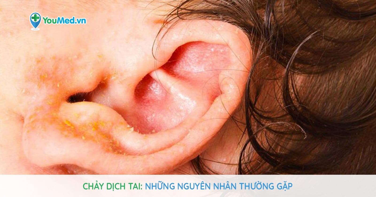 Chảy dịch tai: Những nguyên nhân thường gặp