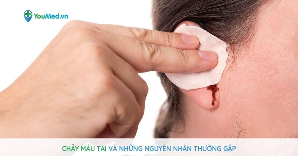 Chảy máu tai: Những nguyên nhân thường gặp