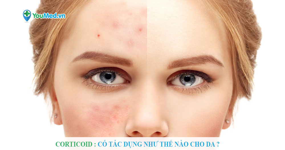 Corticoid : Có tác dụng như thế nào cho da ?