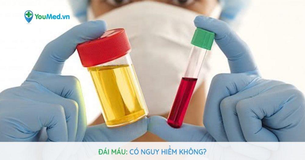 Đái máu: Có nguy hiểm không?