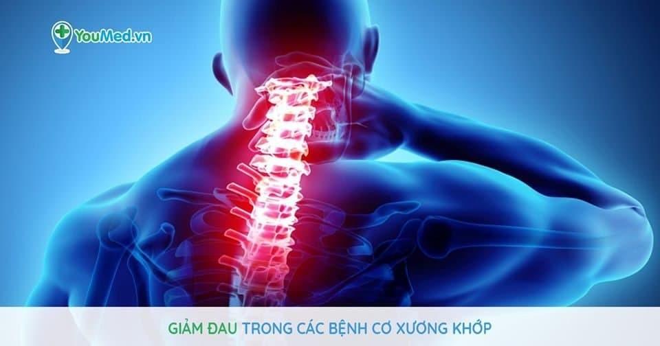 Giảm đau : Trong các bệnh cơ xương khớp