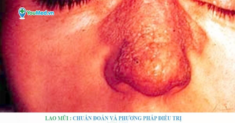 Lao mũi : Chẩn đoán và phương pháp điều trị