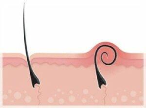 bệnh lông mọc ngược