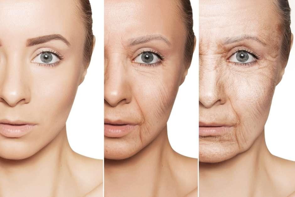Thế nào là một làn da đẹp