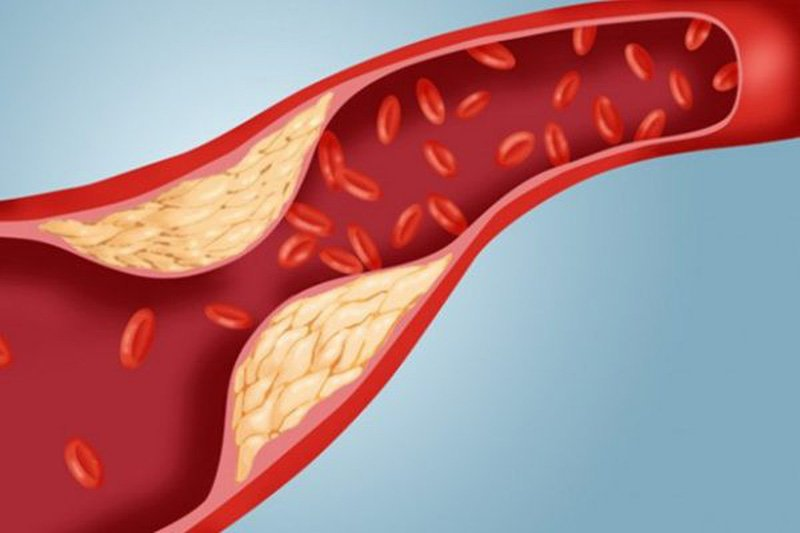 thuốc điều trị rối loạn lipid máu Lopid (gemfibrozil)