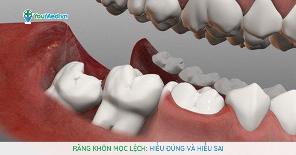 Răng khôn mọc lệch: Hiểu đúng và hiểu sai