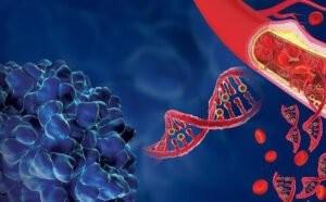 xét nghiệm máu phát hiện sớm ung thư