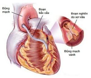 mổ bắc cầu động mạch vành