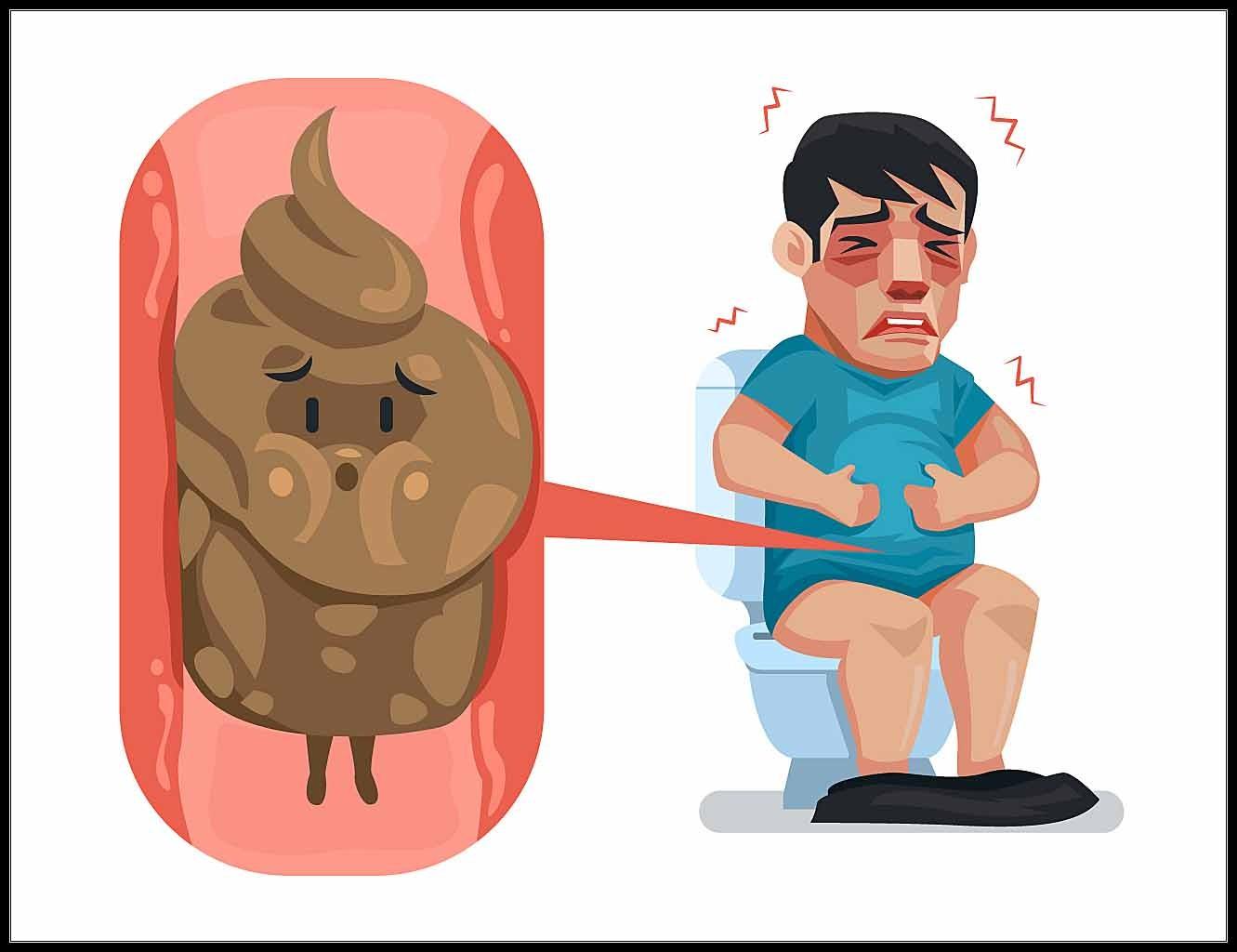 Táo bón là bệnh gì? Cách trị táo bón và phòng ngừa hiệu quả 1