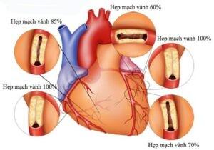 Chụp động mạch vành : Có nguy hiểm không?