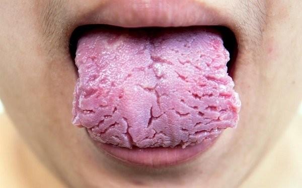 vết nứt trên lưỡi