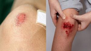vết thương ngoài da