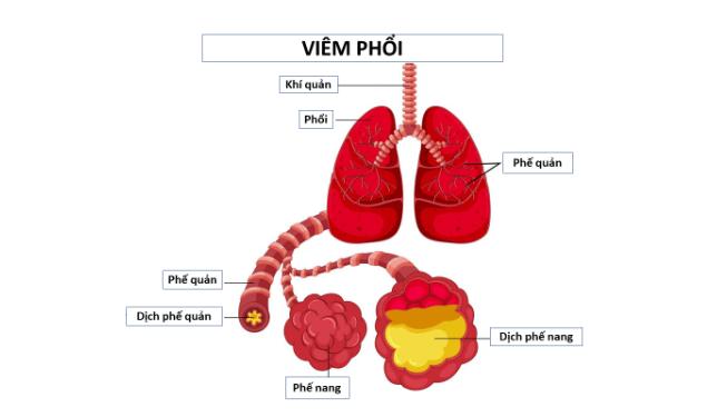 Viêm phổi là gì? Có nguy hiểm không ?