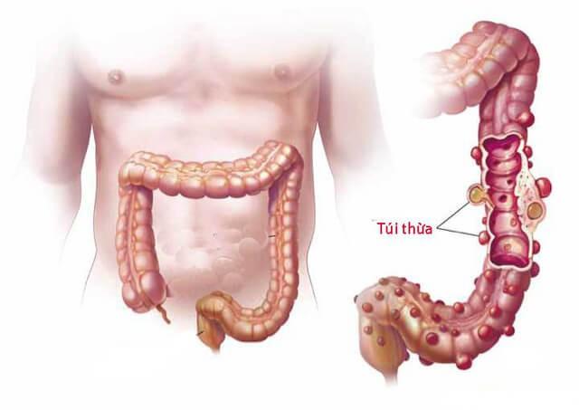 Túi thừa là những túi nhỏ ở ruột, xuất hiện chủ yếu ở đại tràng (ruột già)