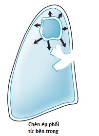 Xẹp phổi do khối u đè ép phế nang.