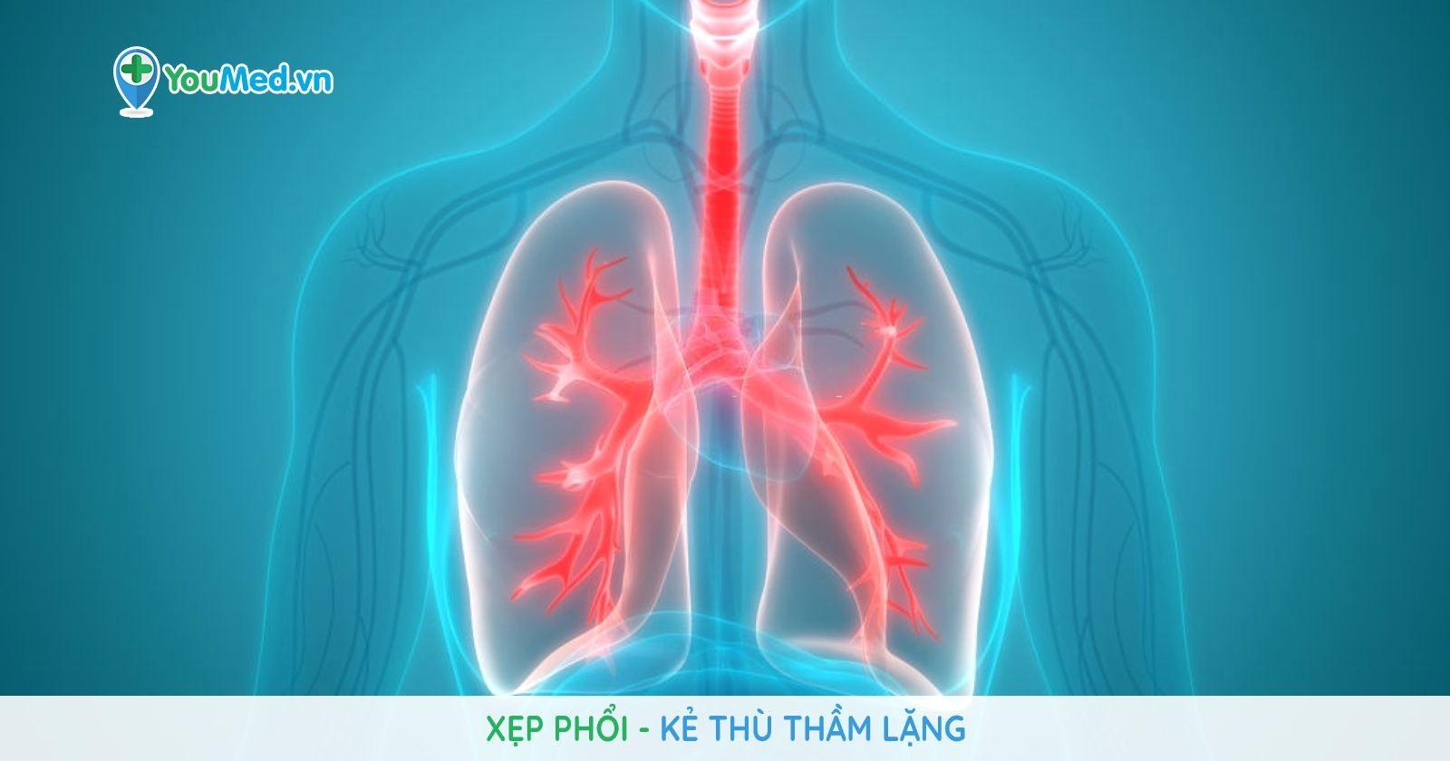 Xẹp phổi: Kẻ thù thầm lặng
