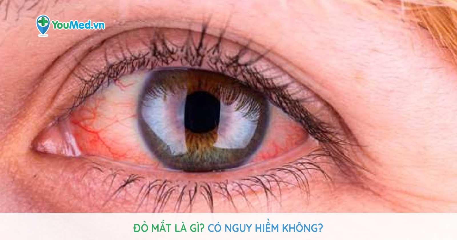 Đỏ mắt do đâu? Có thực sự nguy hiểm?
