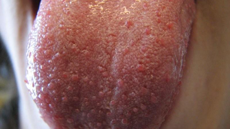Sưng nhú lưỡi và những điều bạn cần biết để phòng tránh