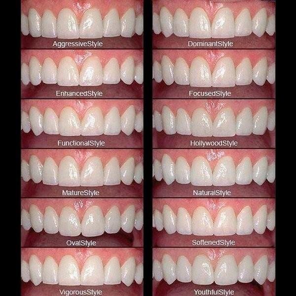 Thiết kế hình dạng răng