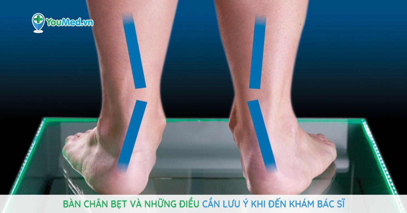 Bàn chân bẹt và những điều cần lưu ý khi đến khám bác sĩ