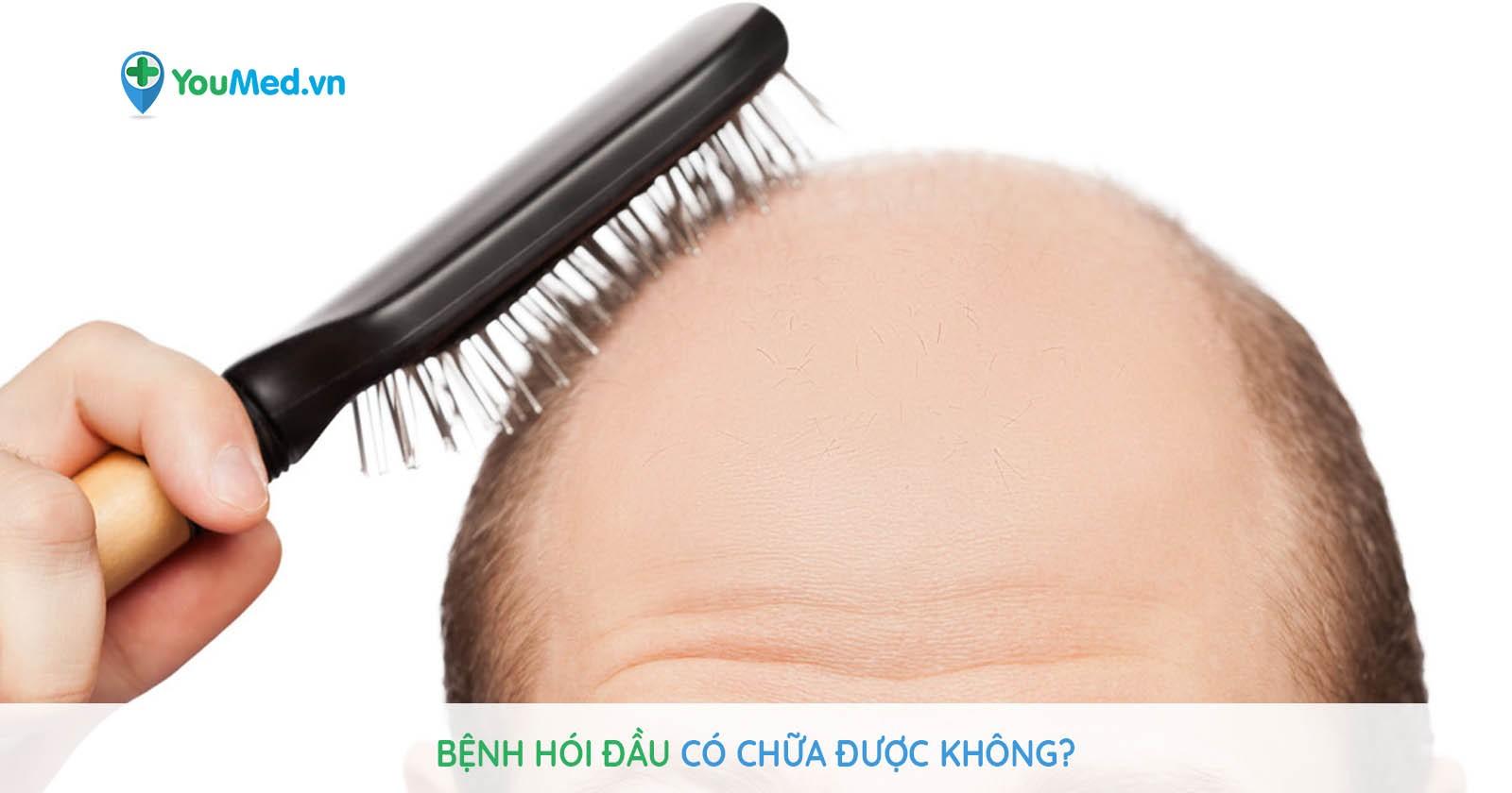 Bệnh hói đầu có chữa được không?
