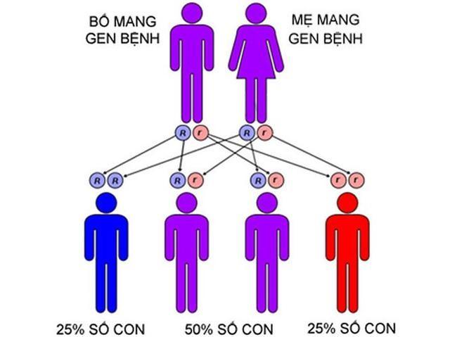 Bệnh teo cơ tủy sống là do di truyền
