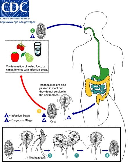 nhiễm Giardia