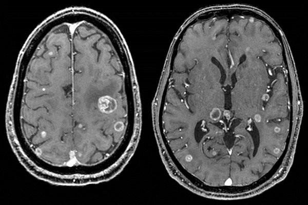 Hình ảnh ung thư não trên CT Scan