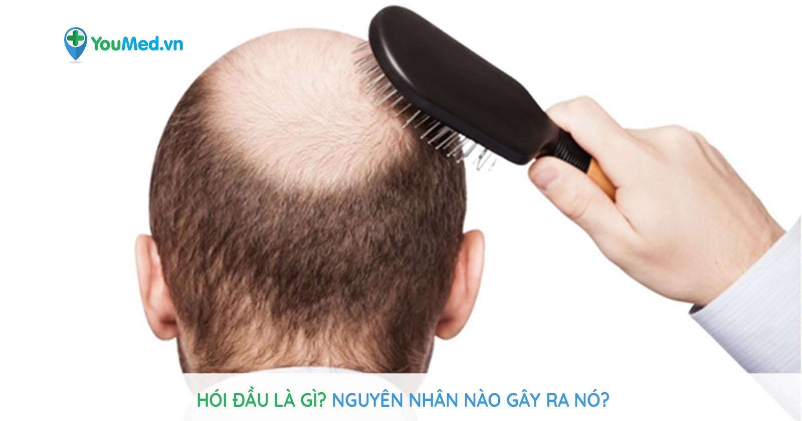 Hói đầu là gì? Nguyên nhân nào gây ra nó?