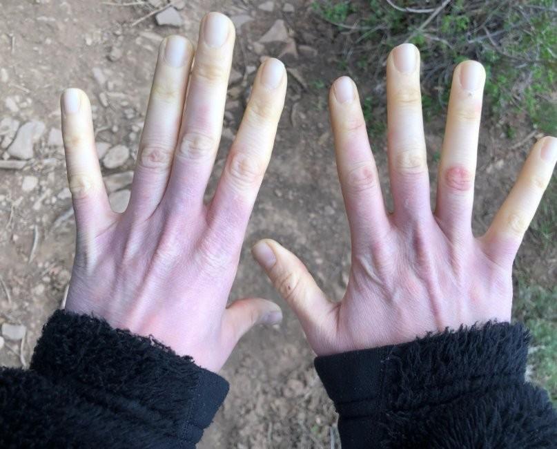 Hội chứng Raynaud ở bàn tay