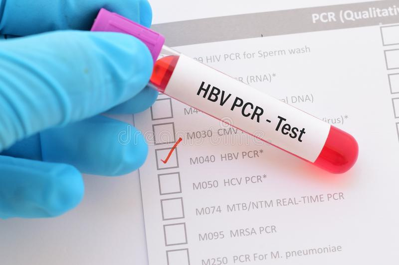 xét nghiệm virus