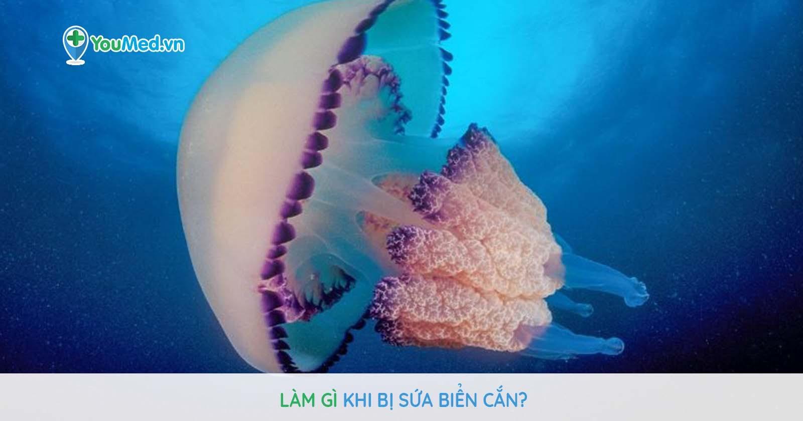 Bị sứa cắn, xử trí sao cho đúng?