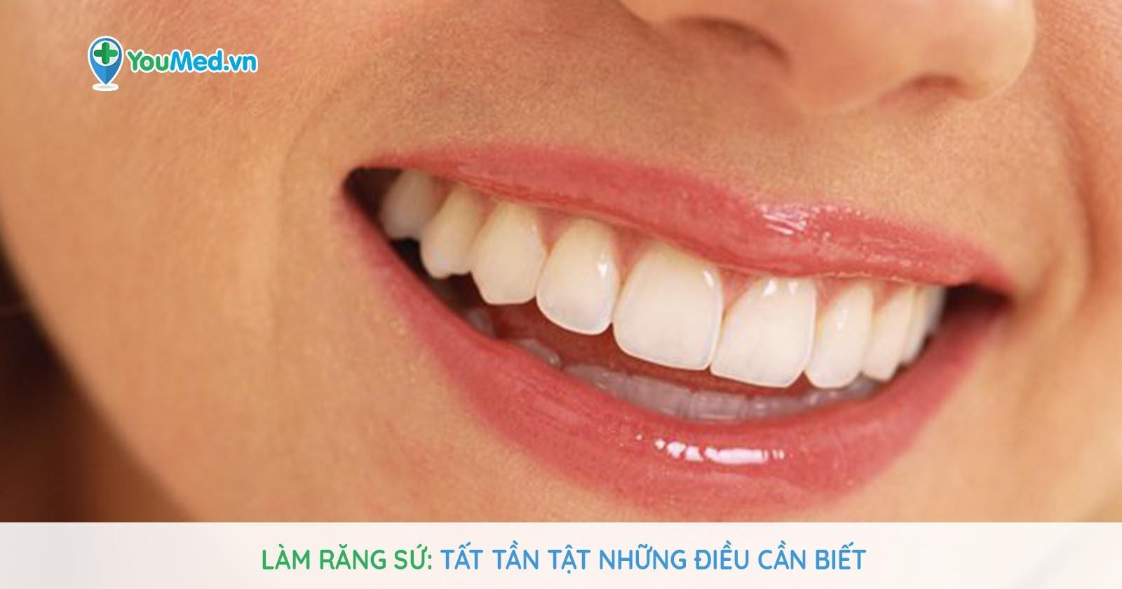Làm răng sứ: Tất tần tật những điều cần biết