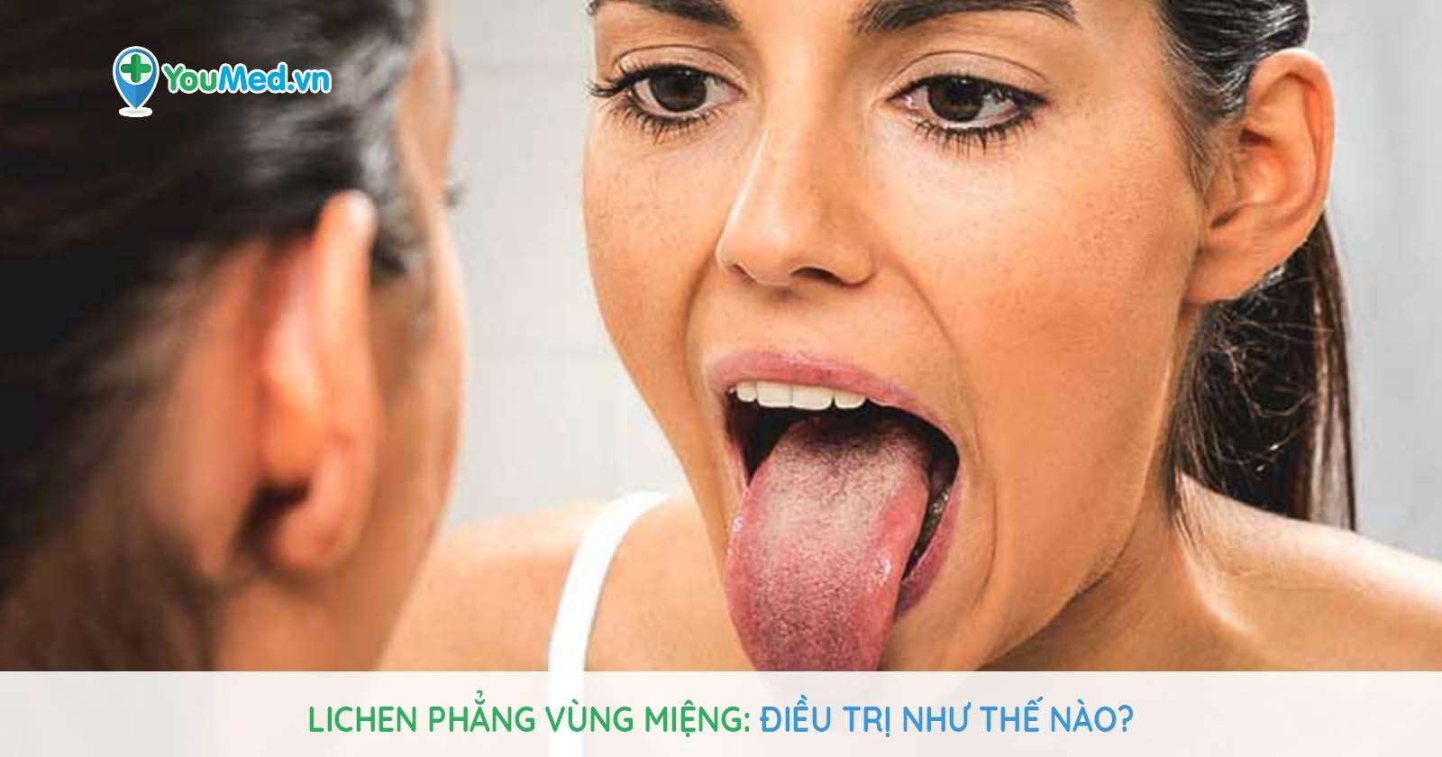 Lichen phẳng vùng miệng: Điều trị như thế nào?