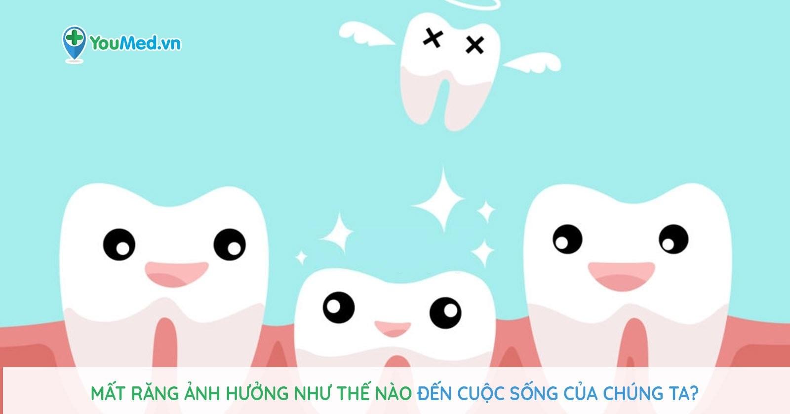 Mất răng ảnh hưởng như thế nào đến cuộc sống của chúng ta