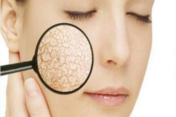 Soi da là một phương pháp thường quy giúp chẩn đoán mụn nội tiết